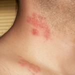 herpes zoster wikpedia nova