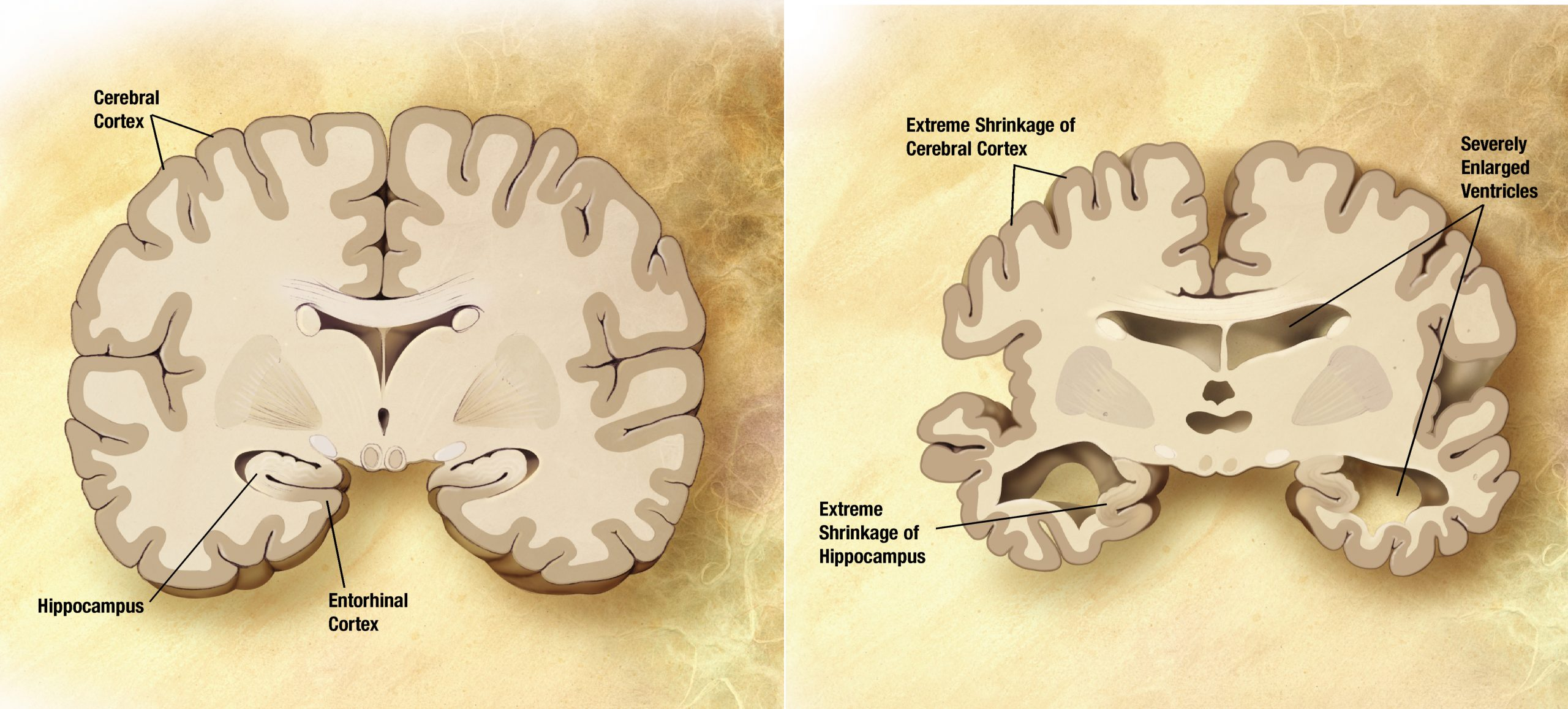 Pesquisa Farmacêutica para diagnosticar Alzheimer pela saliva avança.